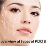 An overview of types of PDO threads